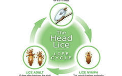 How long have You had Head Lice?