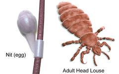September is National Lice Awareness Month